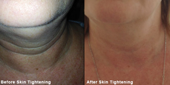 Don't Just Fight Wrinkles, Tighten Your Skin